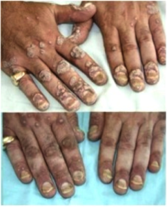 chronic-psoriasis