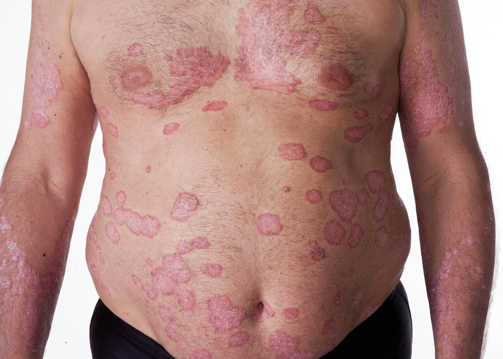 Psoriasis : een helder overzicht | huidinfo.nl ...