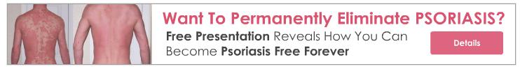 thepsoriasisprogram banner1